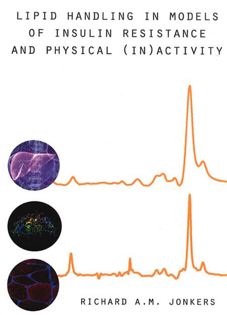 Cover-Lipid-handling-in-models-of-insulin-resistance-and-physical-(in)activity