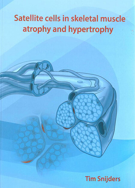 Cover-Satellite-cells-in-skeletal-muscle-atrophy-and-hyperthrophy